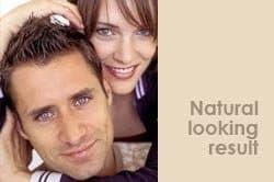 natural-looking-hair-transplant-results