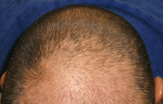 MPB example showing top of mans head