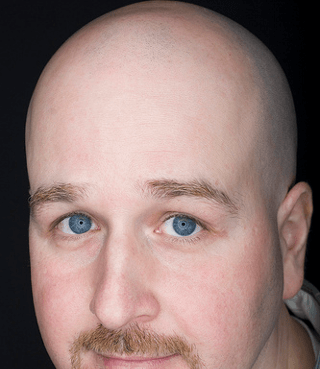 A young man with severe hair loss
